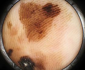 悪性黒色腫のダーモスコピー像